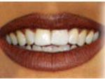 dentistas Terapia Clark