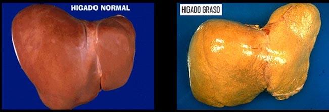 medicamento para bajar el acido urico acido urico na urina sintomas dieta para la gota remedios caseros